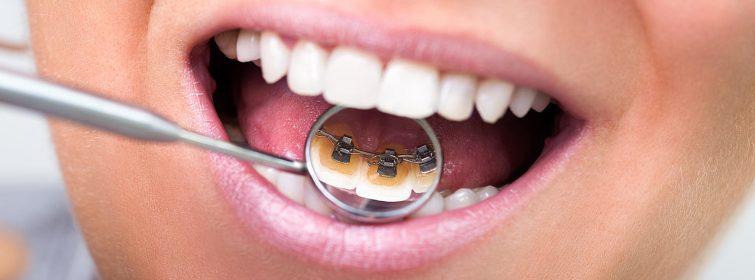 lingual-braces