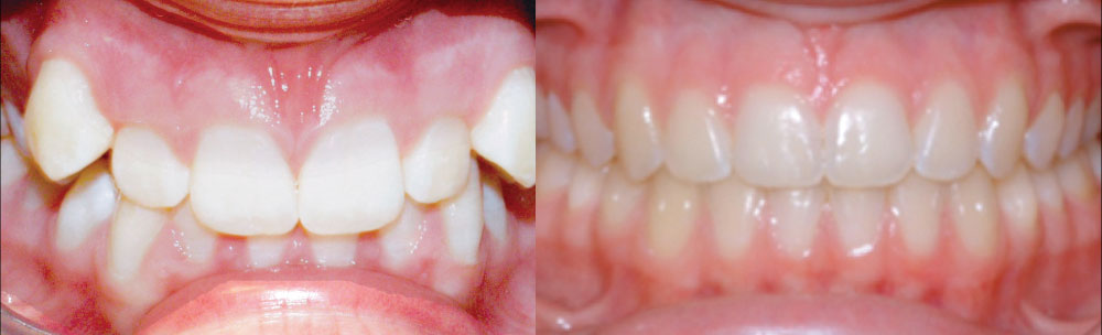 Damon braces, Coventry and Warwickshire Centre for Advanced